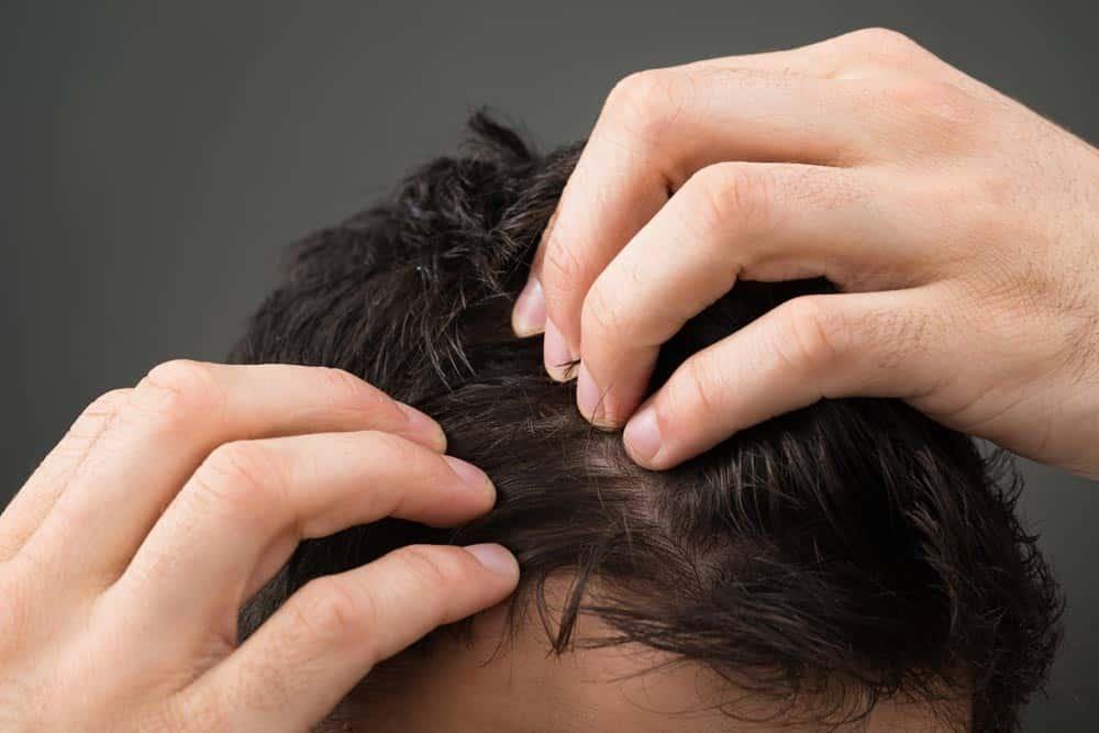 Comment freiner l'arrivée de l'alopécie avec des remèdes naturels?